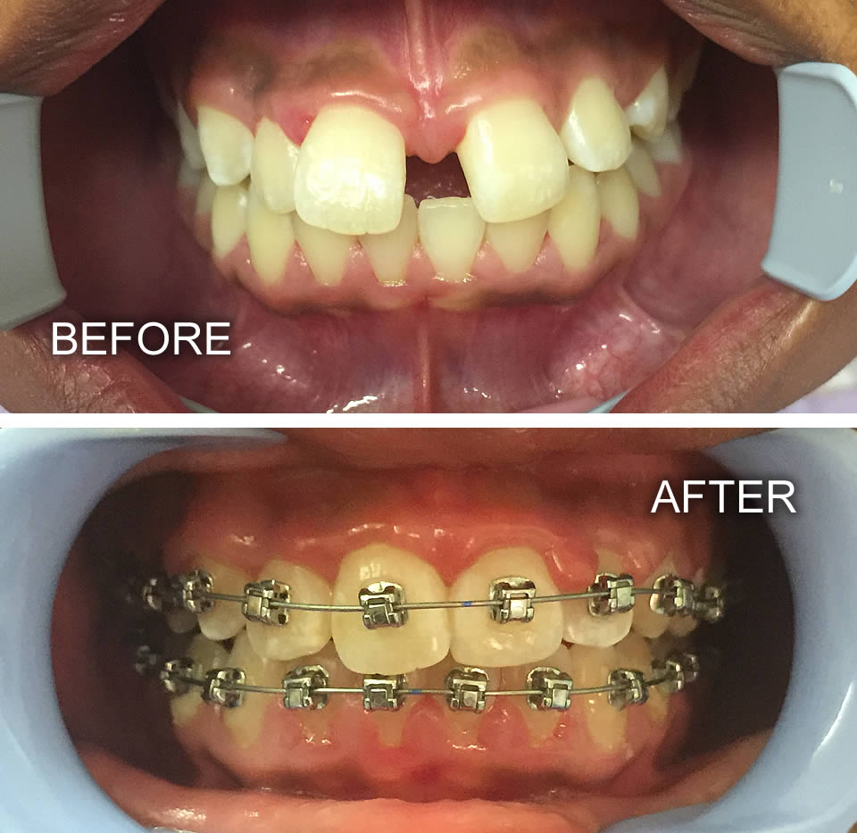 Rustenburg Dentist Supreme Dental Studios